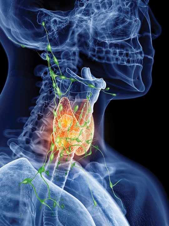 Setting Limits Lymph Node Removal Thyroid Cancer Endocrine News