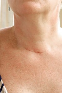 "To prevent a similar scar, many thyroidectomy patients are seeking out a ""robotic"" approach."